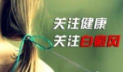 云南白癜风治疗医院:用激素治疗白癜风带来的危害有哪些