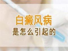 云南昆明白癜风医院:白癜风的成因有哪些
